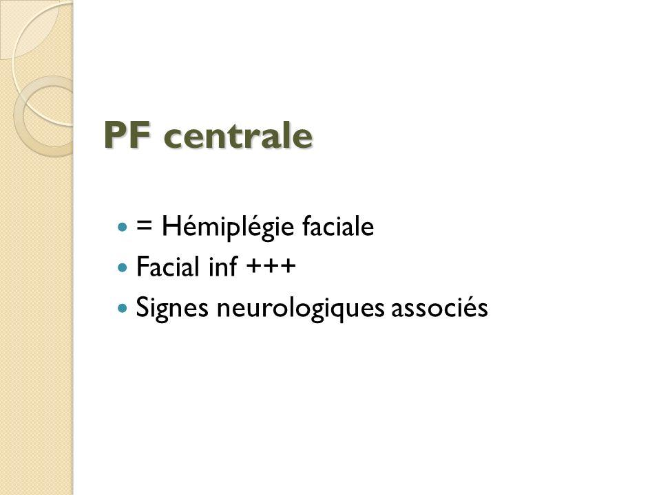 PF centrale = Hémiplégie faciale Facial inf +++ Signes neurologiques associés