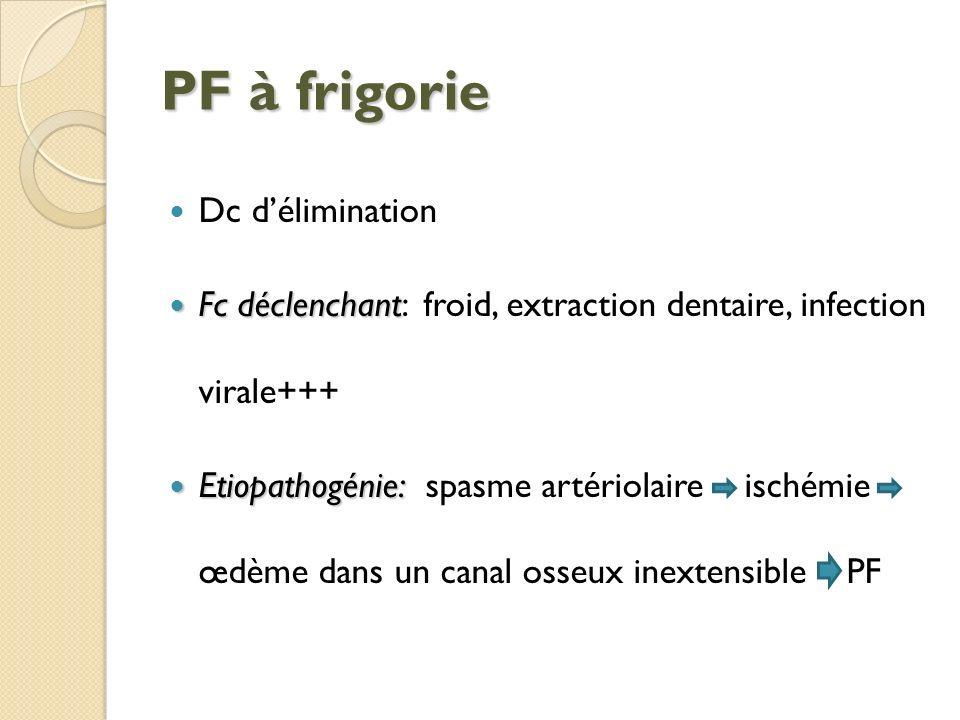 PF à frigorie Dc délimination Fc déclenchant Fc déclenchant: froid, extraction dentaire, infection virale+++ Etiopathogénie: Etiopathogénie: spasme ar