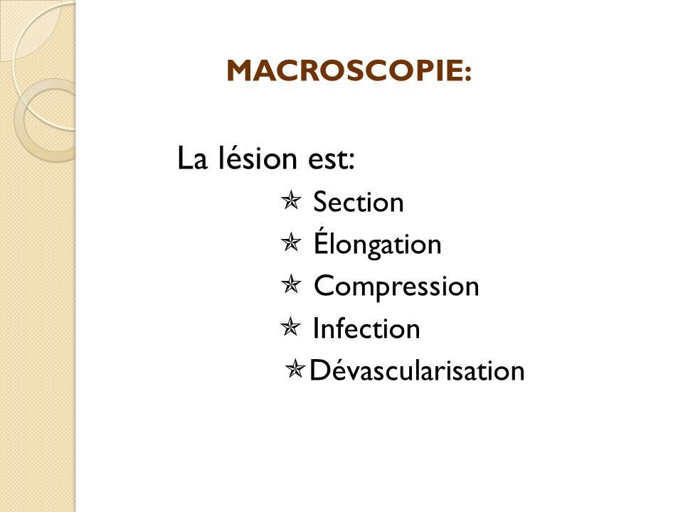 MACROSCOPIE: La lésion est: Section Élongation Compression Infection Dévascularisation