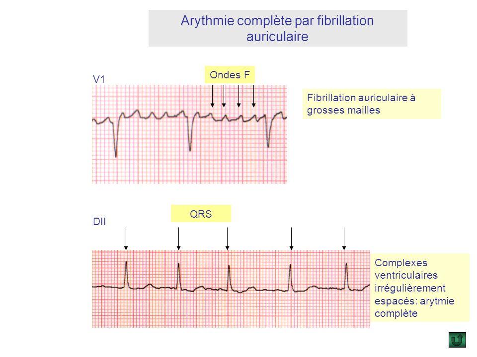 Embolies à partir du cœur gauche : Les trouble du rythme paroxystiques : Les trouble du rythme paroxystiques : larythmie complète par fibrillation aur