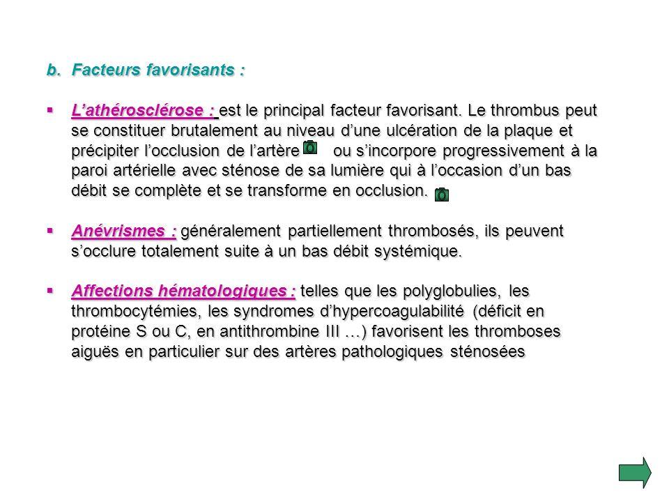 2.Thrombose aiguë : a. Définition : Cest la formation dun caillot à lintérieur dune artère souvent pathologique. Elle siège surtout au niveau des gros