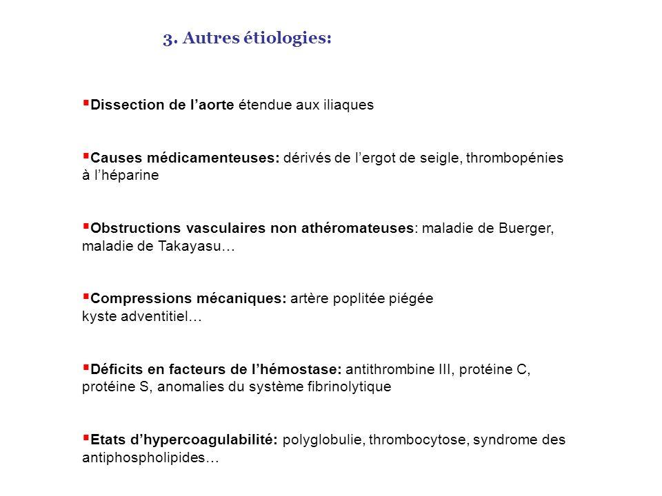 Thrombose constituée avec sténose plus importante