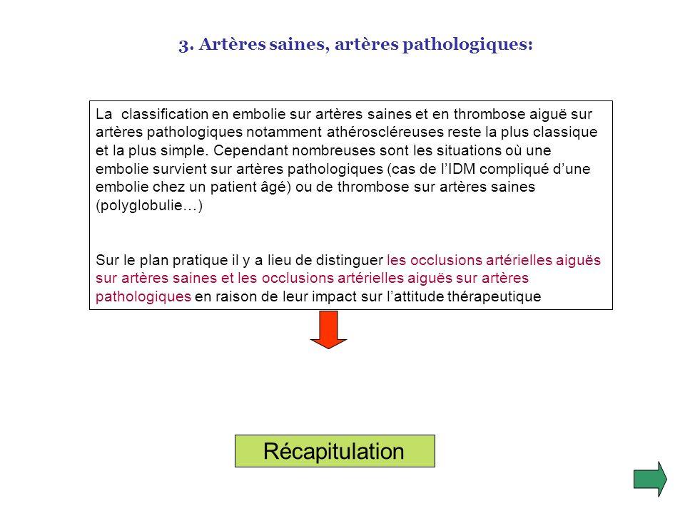 3. Autres étiologies: Dissection de laorte étendue aux iliaques Causes médicamenteuses: dérivés de lergot de seigle, thrombopénies à lhéparine Obstruc