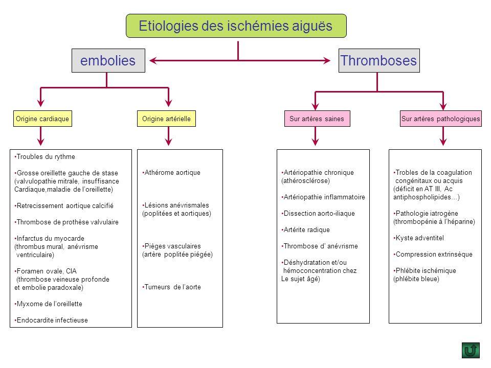 3. Artères saines, artères pathologiques: La classification en embolie sur artères saines et en thrombose aiguë sur artères pathologiques notamment at