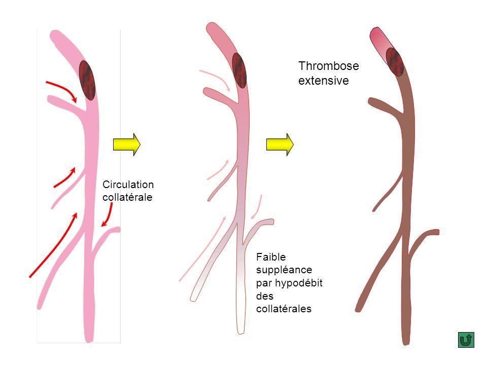 La chute de débit causée par lobstacle intra artériel est au début partiellement compensée par les collatérales de suppléance. Linterruption de ces de