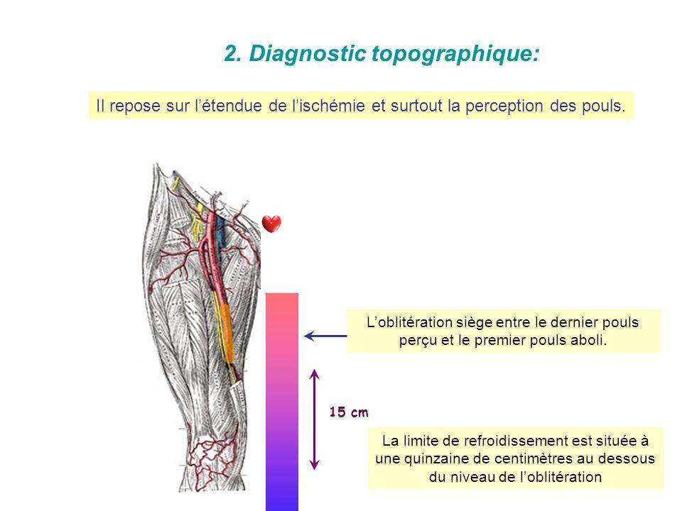1.Diagnostic positif : Il est généralement évident devant la forme classique brutale. Il devient difficile lorsque lischémie est à début progressif et