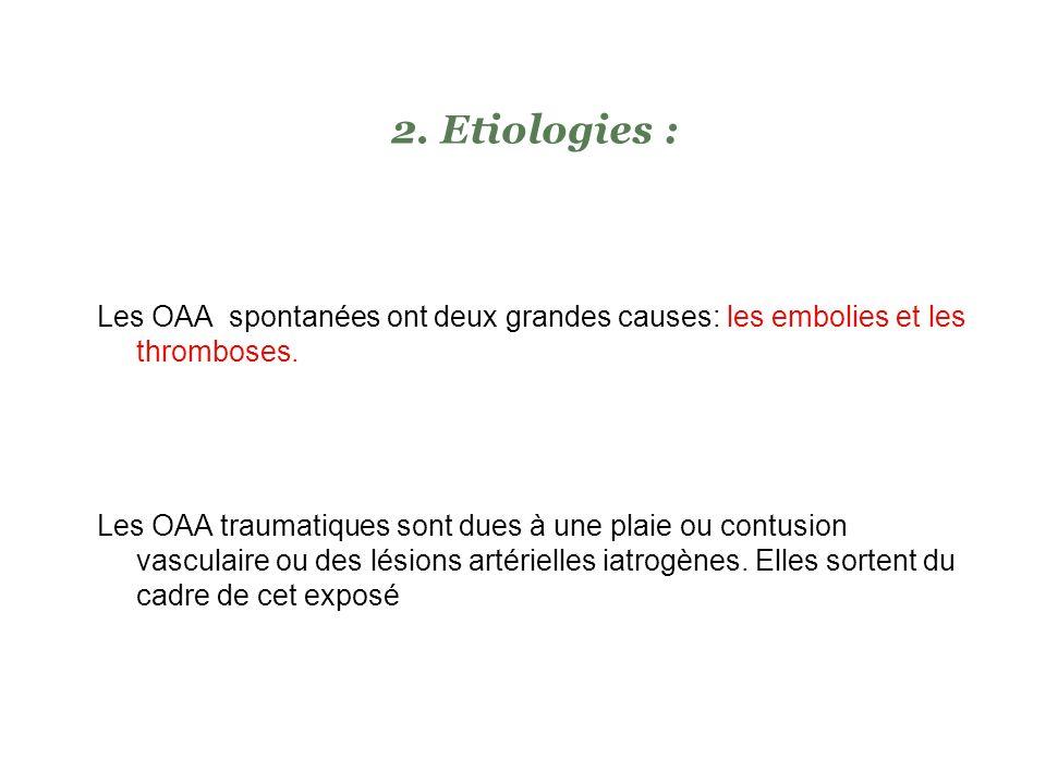 Lischémie aiguë se définit par une insuffisance circulatoire aiguë conséquence dune interruption brutale du flux artériel au niveau du membre ou oblit