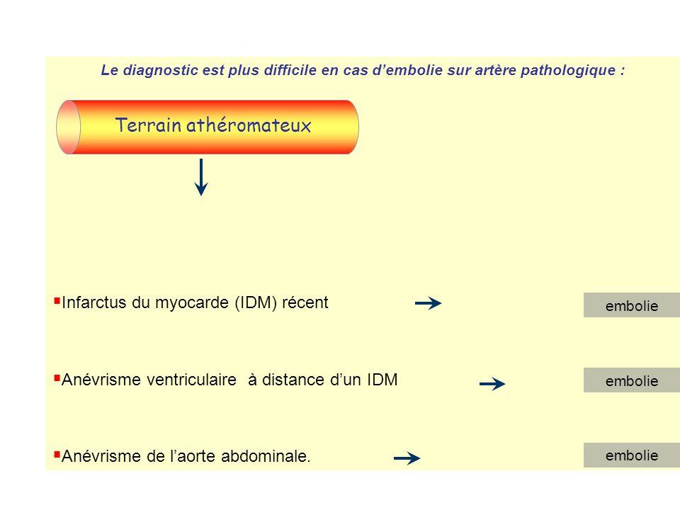 B.Causes: 1.Arguments en faveur de lembolie: Le diagnostic est facile lorsque lembolie survient sur des artères saines : Début brutal Terrain : sujet