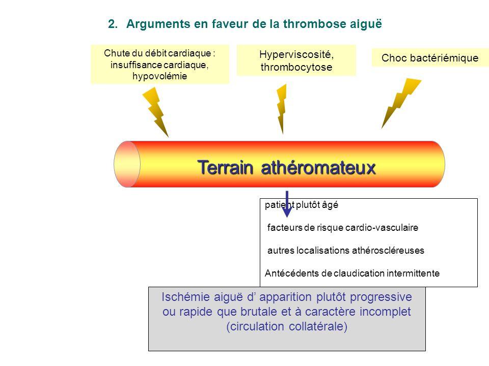 Le diagnostic est plus difficile en cas dembolie sur artère pathologique : Infarctus du myocarde (IDM) récent Anévrisme ventriculaire à distance dun I