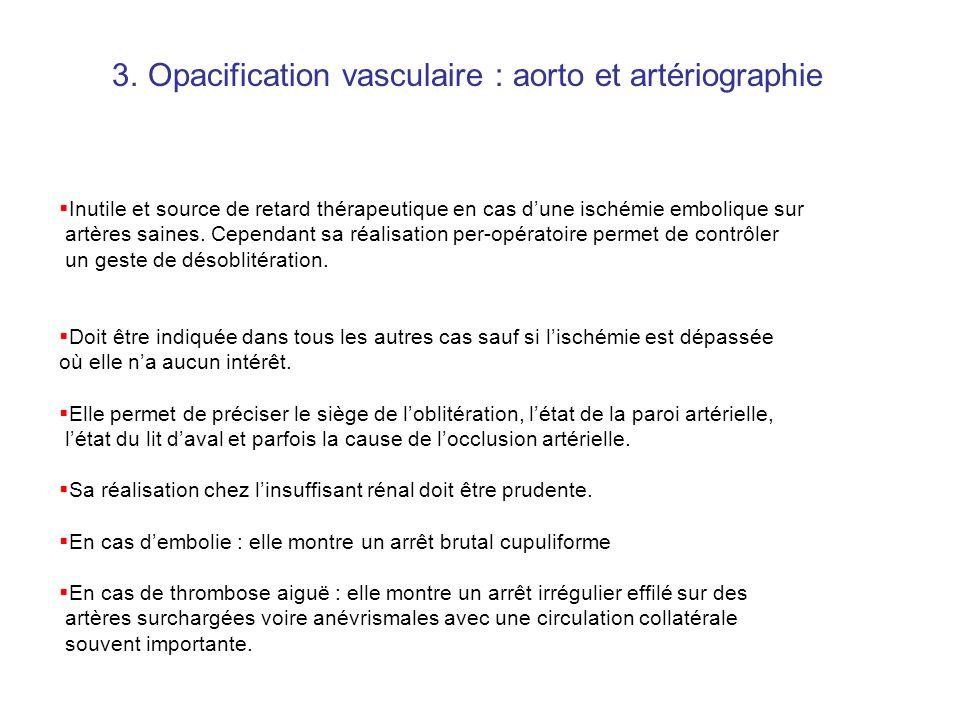 2.Echographie Döppler vasculaire: Examen intéressant dans les formes où le diagnostic clinique est difficile mais peu utile dans les OAA emboliques cl