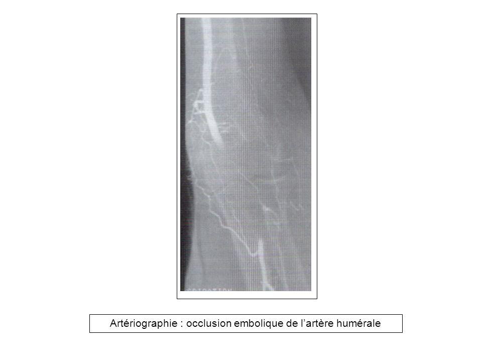 Aorto-artériographie: embolie du carrefour aortique