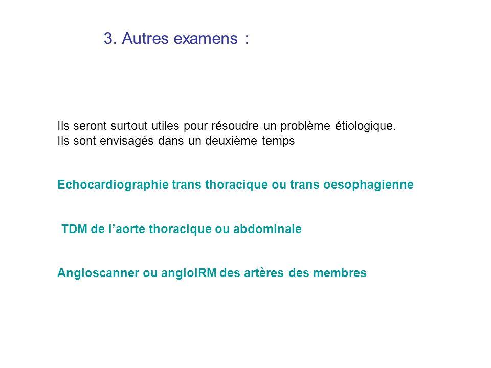 Artériographie : occlusion embolique de lartère humérale