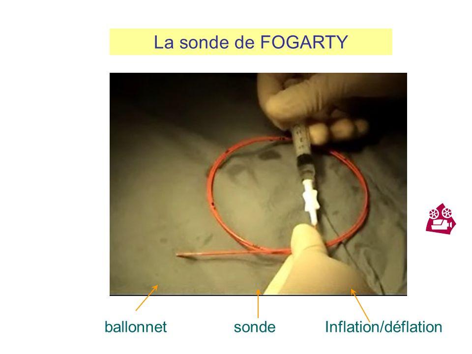 Geste chirurgical simple et efficace qui doit être proposé en cas dembolie sur artères saines. Il consiste à extraire lembole avec la thrombose extens