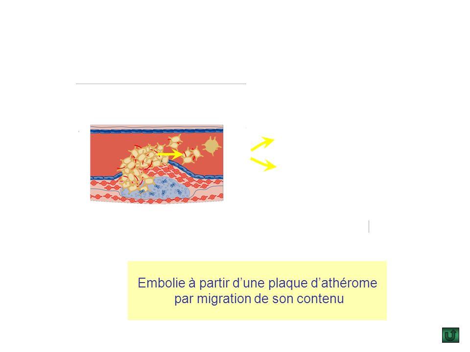 1.Embolie artérielle : a.Définition : Lembolie artérielle se définit par larrêt dun corps anormal en migration dans une artère. b.Sièges : La localisa