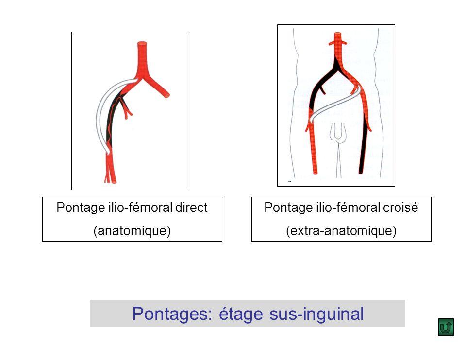 Décollement du sequestre athéromareux par une spatule Résection de la plaque Endartériectomie