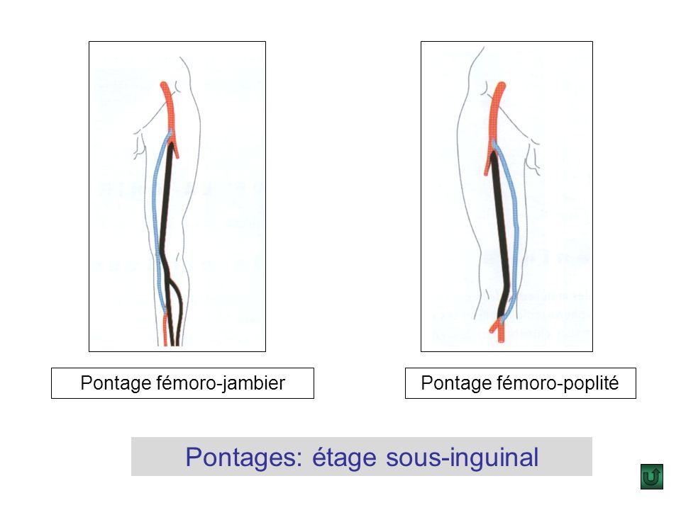 Pontages: étage sus-inguinal Pontage ilio-fémoral direct (anatomique) Pontage ilio-fémoral croisé (extra-anatomique)