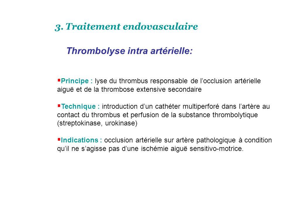 Gestes associés: Aponévrotomies décompressives: permettent de supprimer les conséquences de lœdème musculaire dans une loge inextensible. Cette situat