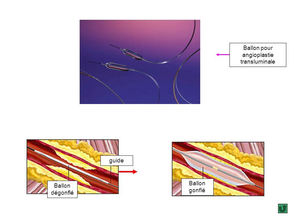 Sondes pour thromboaspiration