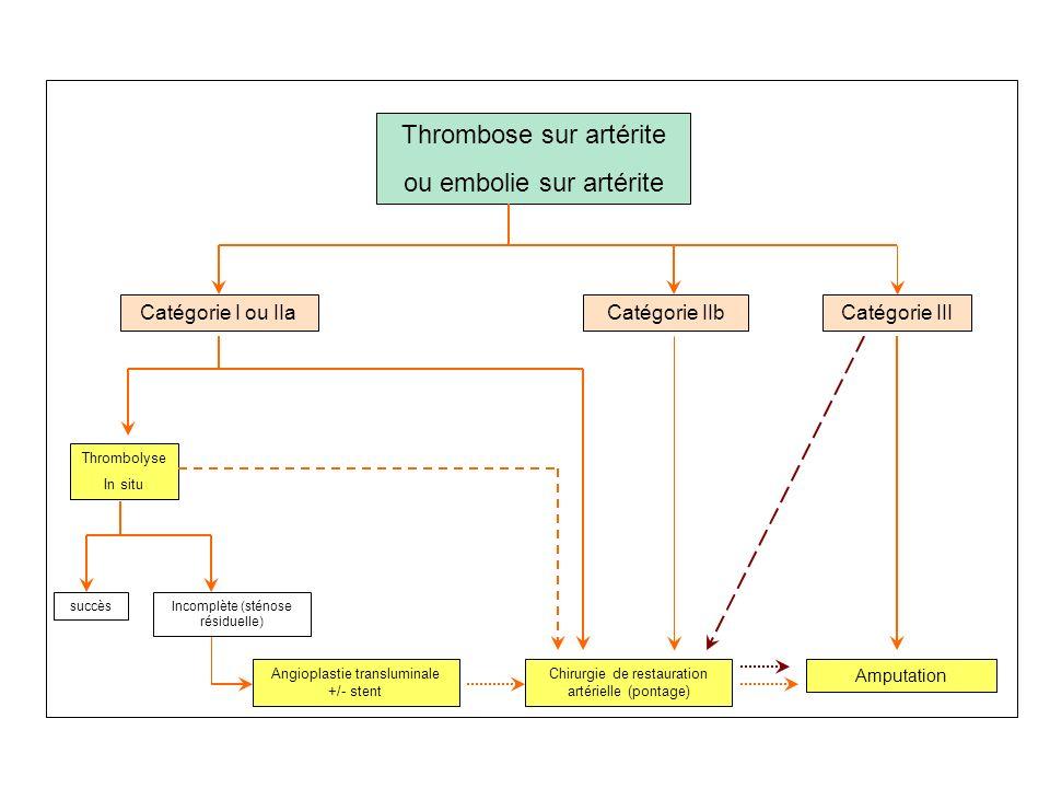 4.Indications Embolie sur artères saines Vue précocément Vue tardivement Diamètre de lartère>6mm et longueur de locclusion>15cm Embolectomie à la sond