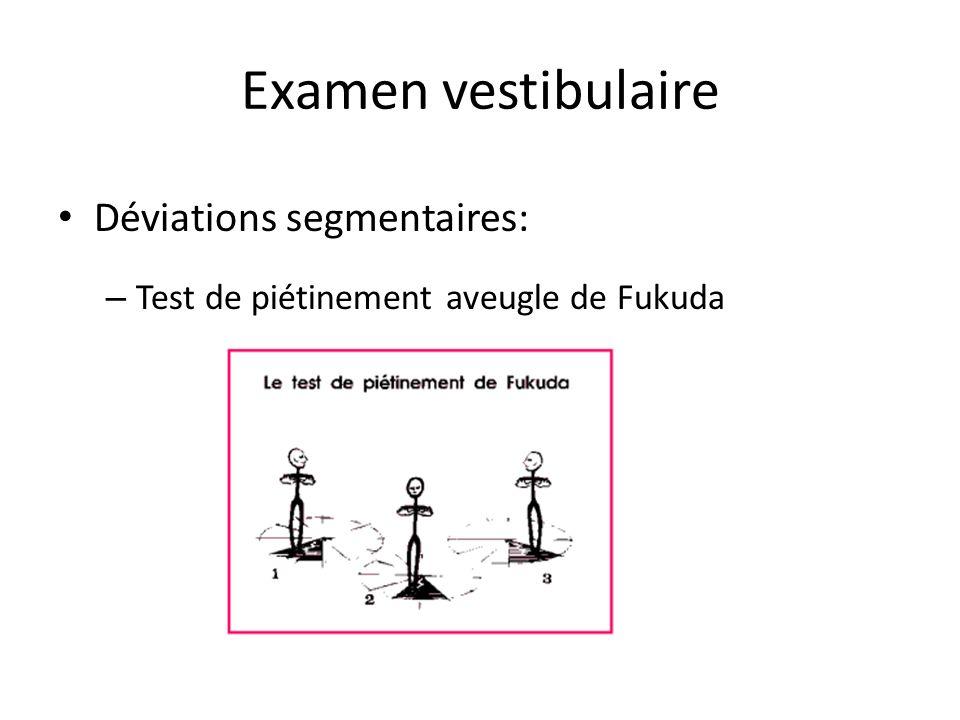 Examen vestibulaire Déviations segmentaires: – Test de piétinement aveugle de Fukuda