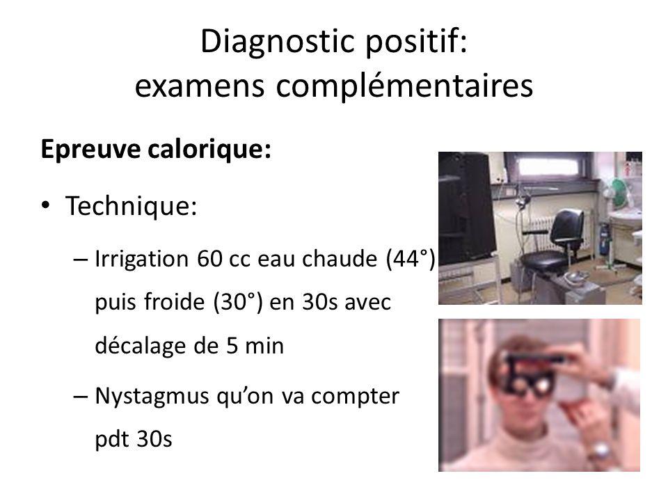 Diagnostic positif: examens complémentaires Epreuve calorique: Technique: – Irrigation 60 cc eau chaude (44°) puis froide (30°) en 30s avec décalage d