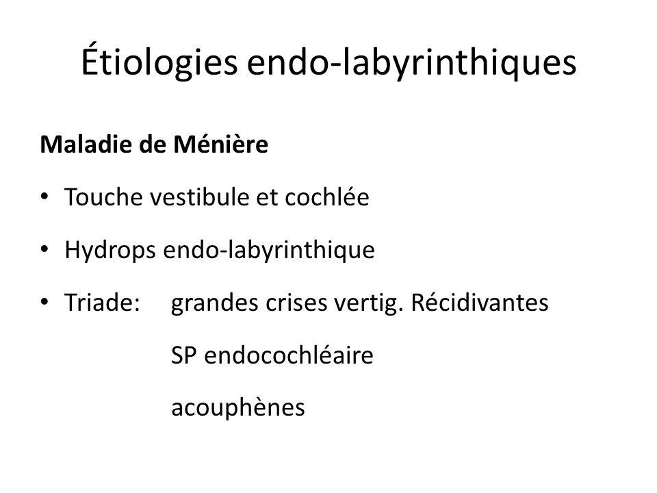 Étiologies endo-labyrinthiques Maladie de Ménière Touche vestibule et cochlée Hydrops endo-labyrinthique Triade: grandes crises vertig. Récidivantes S