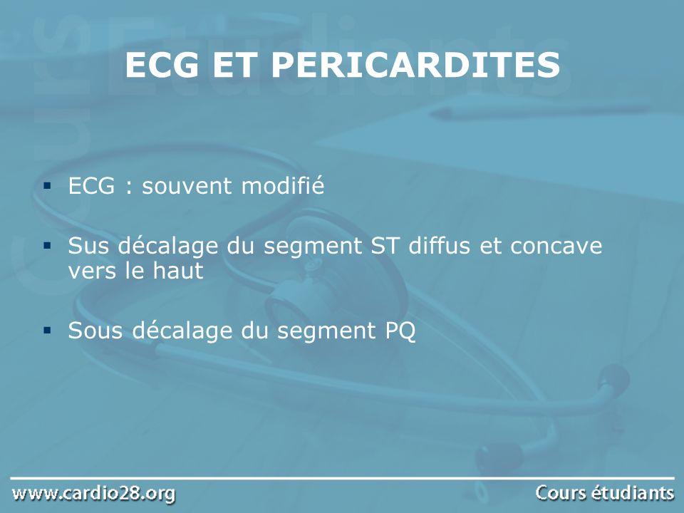 ECG ET PERICARDITES ECG : souvent modifié Sus décalage du segment ST diffus et concave vers le haut Sous décalage du segment PQ