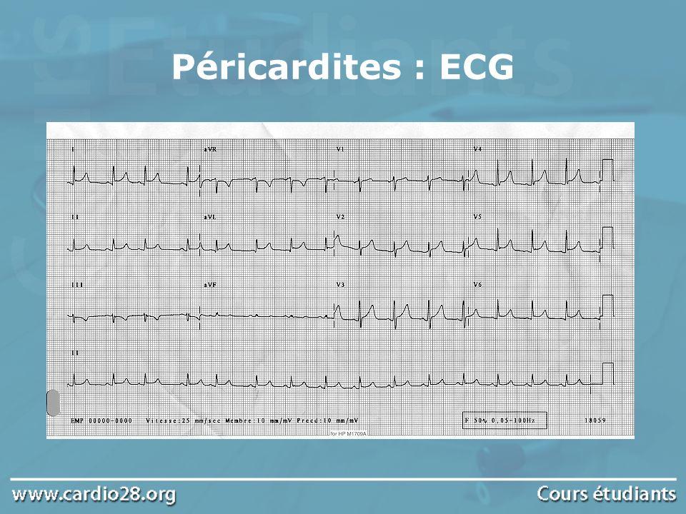 Echographie cardiaque Examen diagnostique le plus fiable, il objective lépanchement péricardique Permet une évaluation quantitative et recherche des signes de mauvaise tolérance Tamponnade (volumineux épanchement péricardique ) Compressions des cavités cardiaques droites