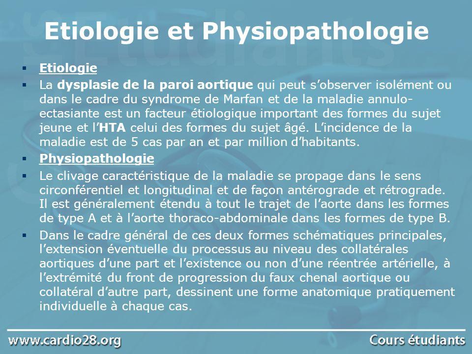 Etiologie et Physiopathologie Etiologie La dysplasie de la paroi aortique qui peut sobserver isolément ou dans le cadre du syndrome de Marfan et de la