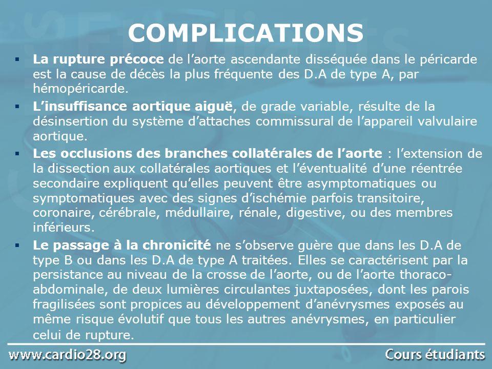 COMPLICATIONS La rupture précoce de laorte ascendante disséquée dans le péricarde est la cause de décès la plus fréquente des D.A de type A, par hémop