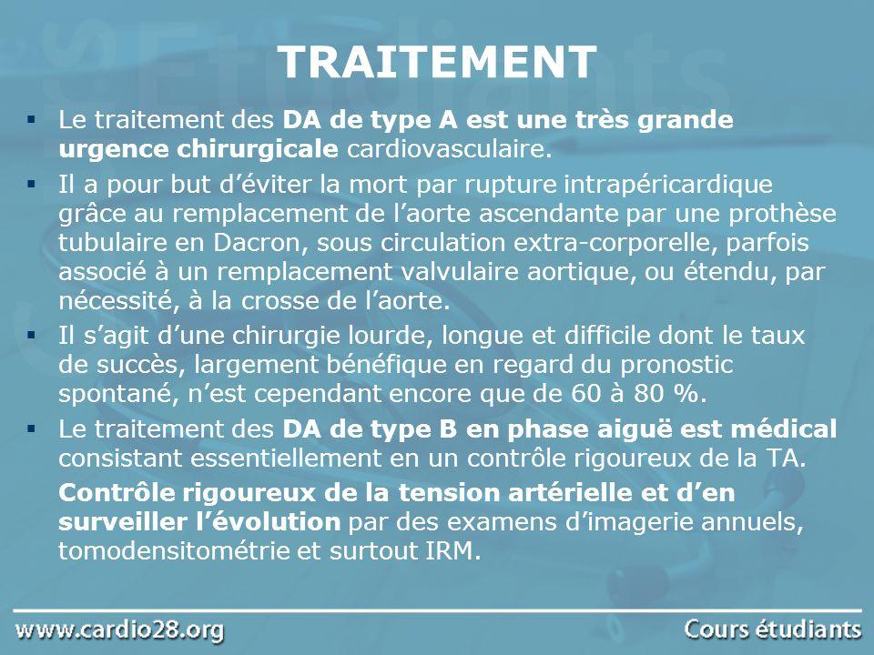 TRAITEMENT Le traitement des DA de type A est une très grande urgence chirurgicale cardiovasculaire. Il a pour but déviter la mort par rupture intrapé