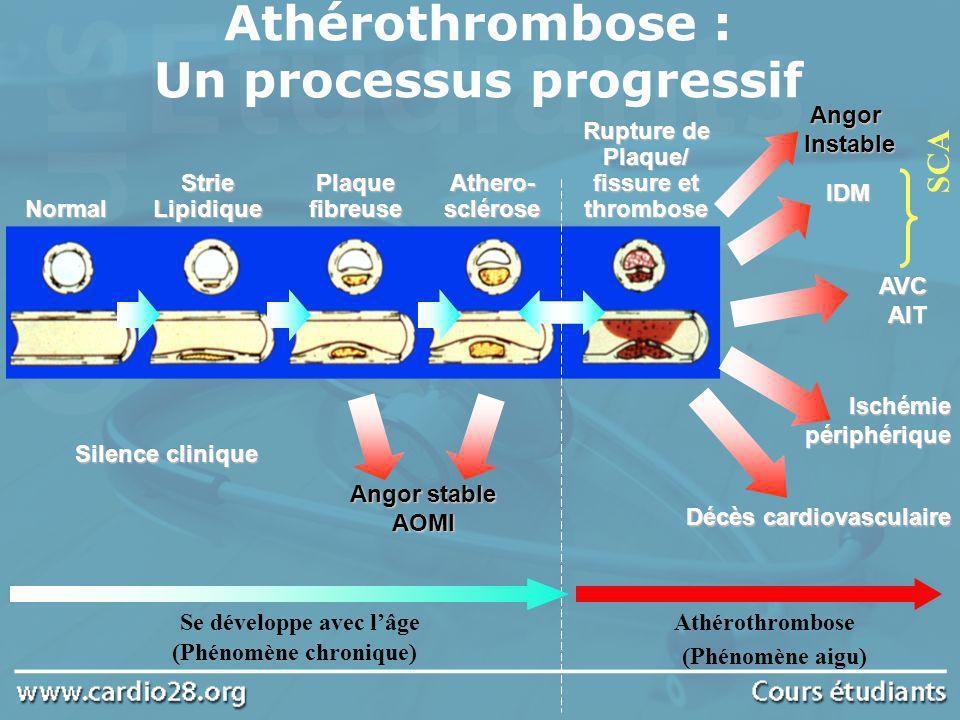 Physiopathologie des SCA Fuster V et al NEJM 1992;326:310–318 Davies MJ et al Circulation 1990;82(Suppl II):II–38, II–46 Amas lipidique MacrophagesContraintesinternes Forces de cisaillementexternes Fissure Fissure importante Fissure limitée Thrombus occlusif IDM Plaqueathéromateuse Plaque fissurée Thrombus Thrombus mural Angor instable IDM Q-