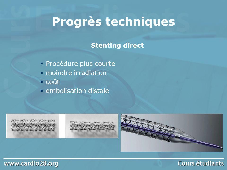 Progrès techniques Stenting direct Procédure plus courte moindre irradiation coût embolisation distale