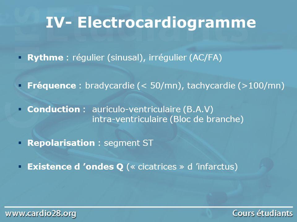 IV- Electrocardiogramme Rythme : régulier (sinusal), irrégulier (AC/FA) Fréquence : bradycardie ( 100/mn) Conduction :auriculo-ventriculaire (B.A.V) i