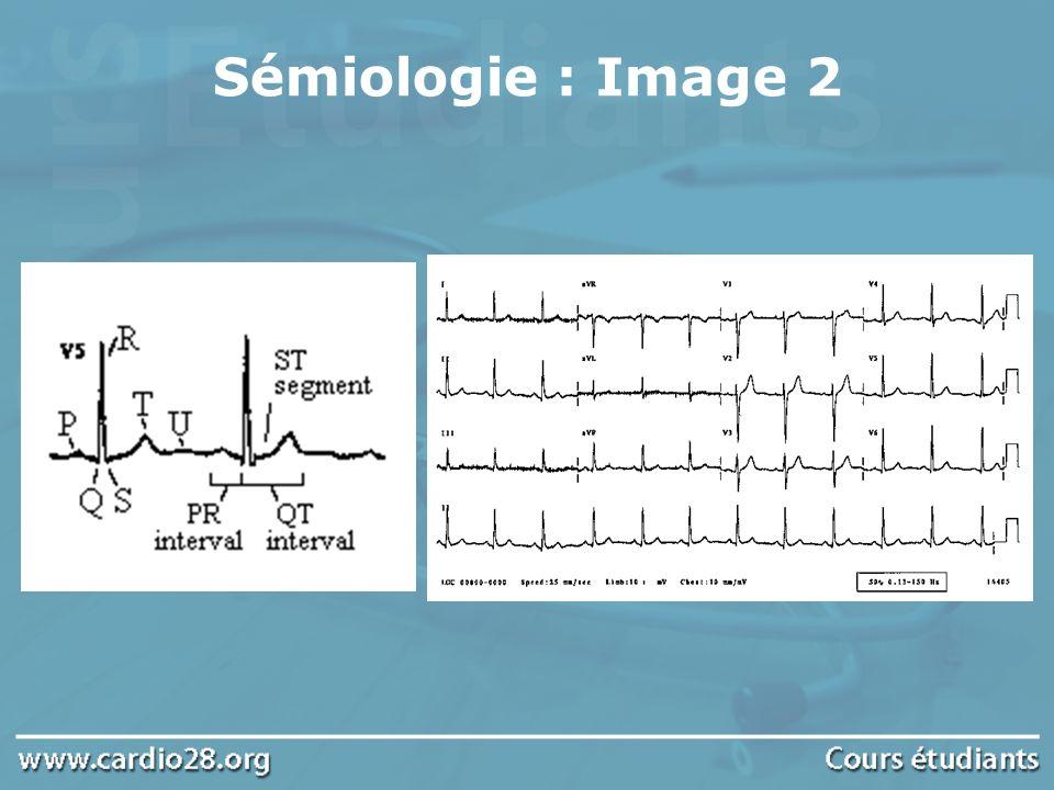 Sémiologie : Image 3