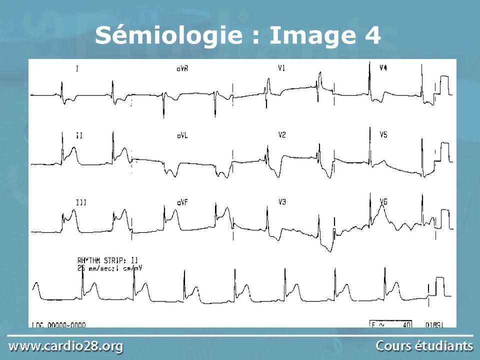 Sémiologie : Image 5