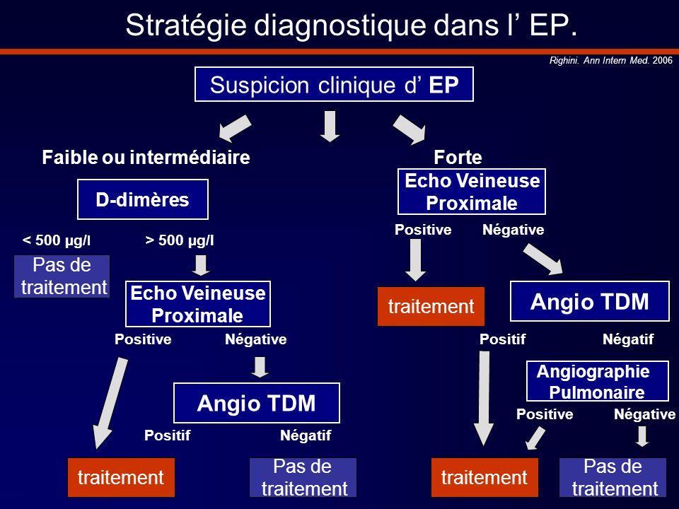 Stratégie diagnostique dans l EP. Suspicion clinique d EP Pas de traitement Angio TDM Faible ou intermédiaireForte D-dimères < 500 µg/ l > 500 µg/l Ec