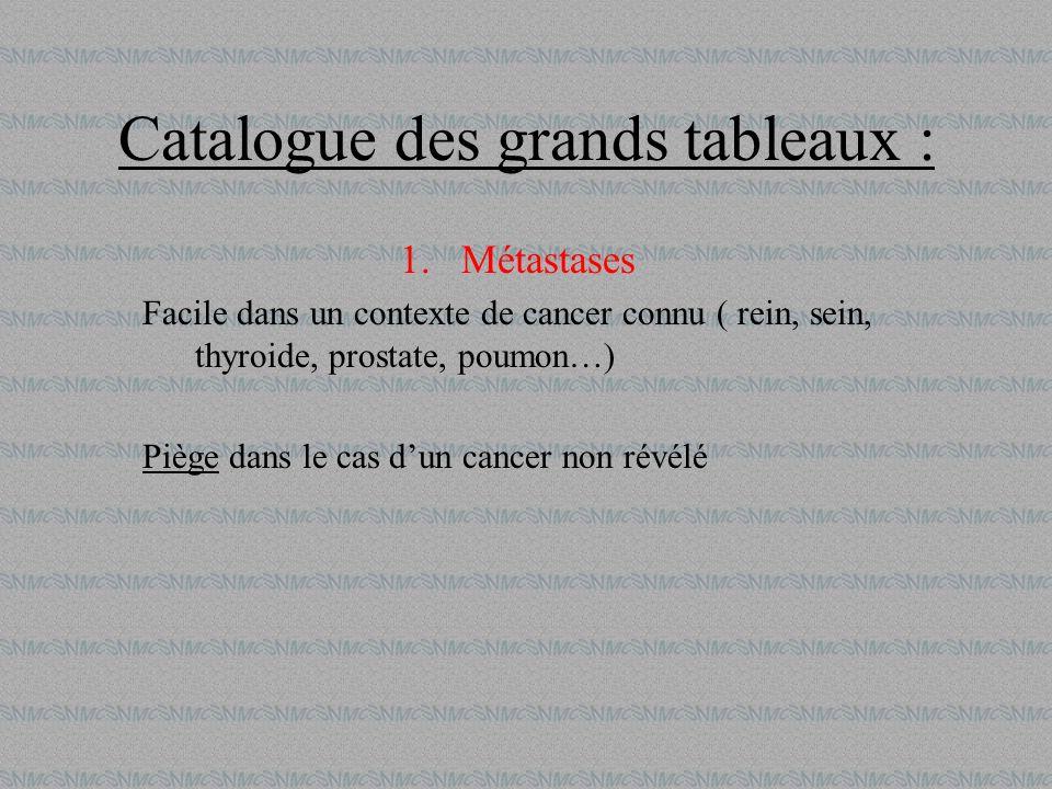 Catalogue des grands tableaux : 1.Métastases Facile dans un contexte de cancer connu ( rein, sein, thyroide, prostate, poumon…) Piège dans le cas dun