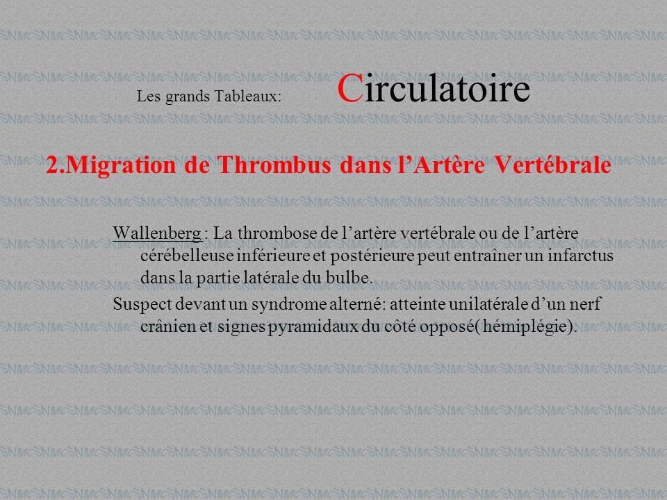 2.Migration de Thrombus dans lArtère Vertébrale Wallenberg : La thrombose de lartère vertébrale ou de lartère cérébelleuse inférieure et postérieure p