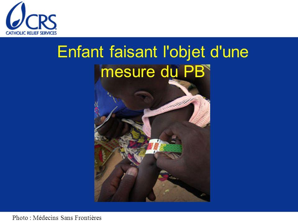 Mesure du PB pour les enfants Malnutrition sévère aiguë/rouge : Moins de 11 cm/110 mm Malnutrition modérée aiguë/Orange : 11 à 12, 4 cm/ 110 à 124 mm Malnutrition Malnutrition légère ou non aiguë/Jaune/Vert : supérieure ou égale à 12,5 cm/125 mm http://www.ifrc.org/Docs/pubs/disasters/resources/helping-recover/fs-assessment.pdf