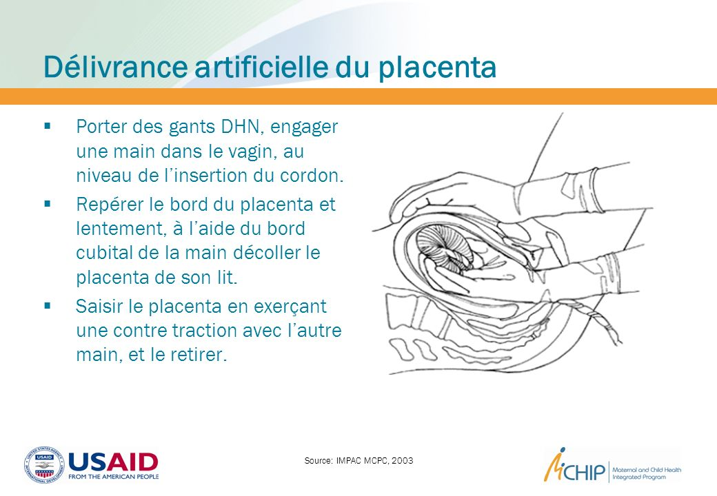 Délivrance artificielle du placenta Porter des gants DHN, engager une main dans le vagin, au niveau de linsertion du cordon. Repérer le bord du placen