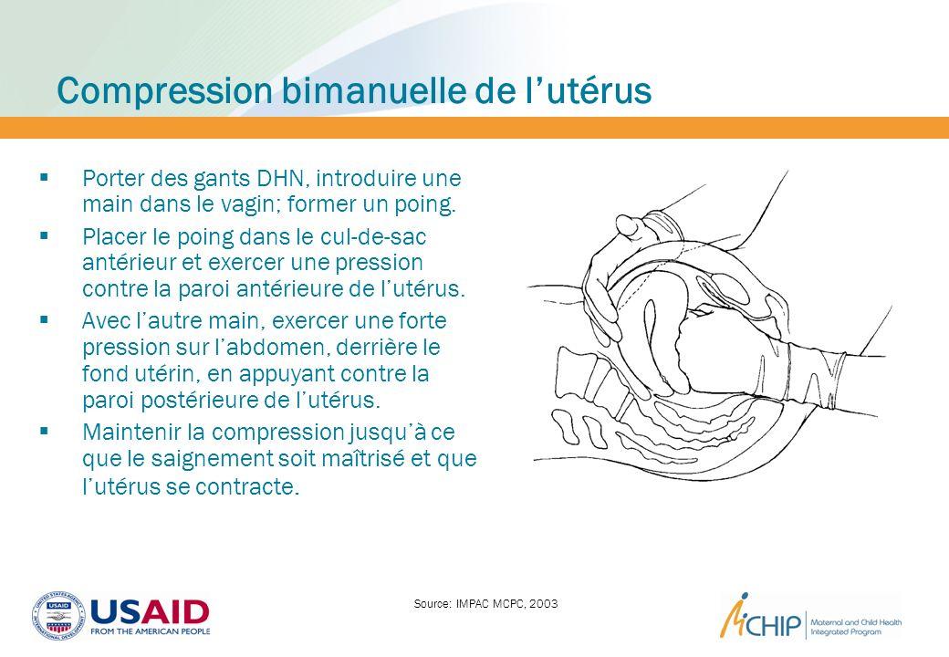 Compression bimanuelle de lutérus Porter des gants DHN, introduire une main dans le vagin; former un poing. Placer le poing dans le cul-de-sac antérie