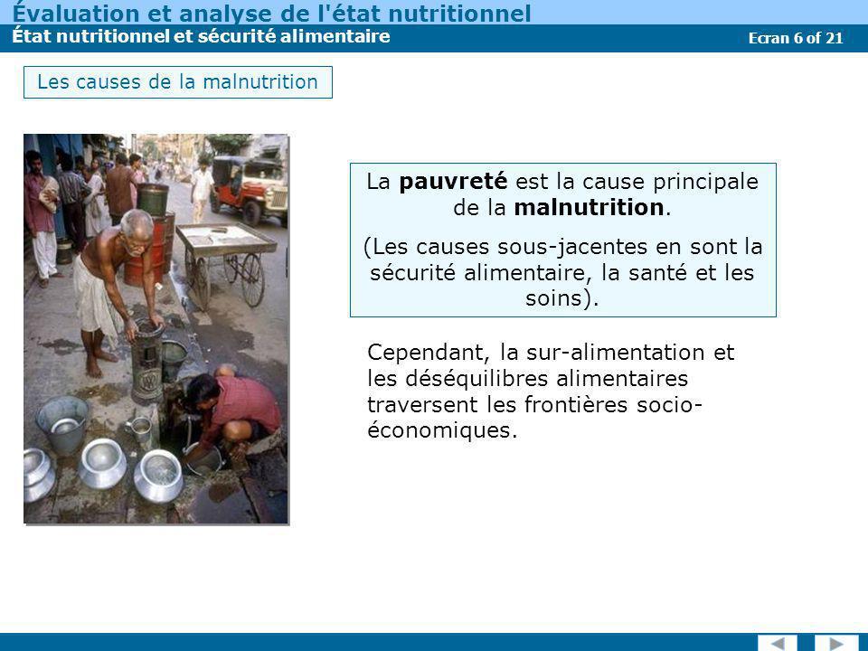 Évaluation et analyse de l'état nutritionnel État nutritionnel et sécurité alimentaire Ecran 6 of 21 Les causes de la malnutrition Cependant, la sur-a
