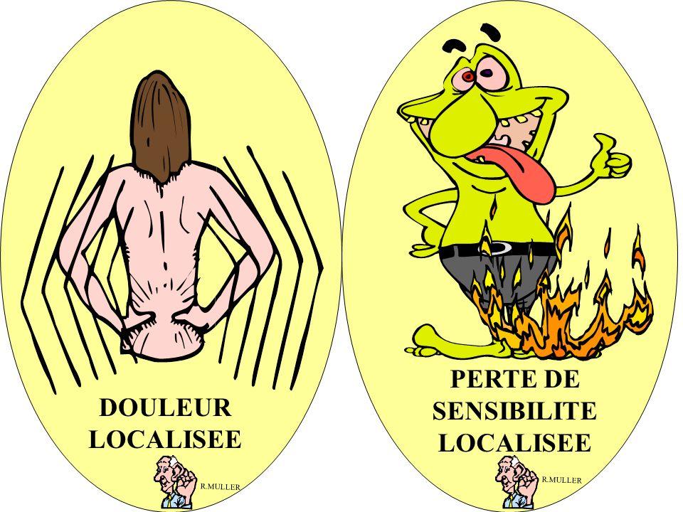 PERTE DE SENSIBILITE LOCALISEE DOULEUR LOCALISEE R.MULLER