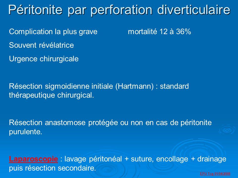EPU Tcg 01/04/2008 Péritonite par perforation diverticulaire Complication la plus grave mortalité 12 à 36% Souvent révélatrice Urgence chirurgicale Résection sigmoidienne initiale (Hartmann) : standard thérapeutique chirurgical.