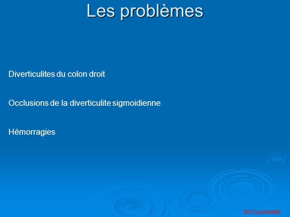 EPU Tcg 01/04/2008 Les problèmes Diverticulites du colon droit Occlusions de la diverticulite sigmoidienne Hémorragies
