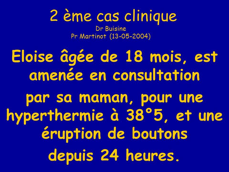 20 Le seul médicament conseillé au cours dune diarrhée aiguë du nourrisson est un antisécrétoire .