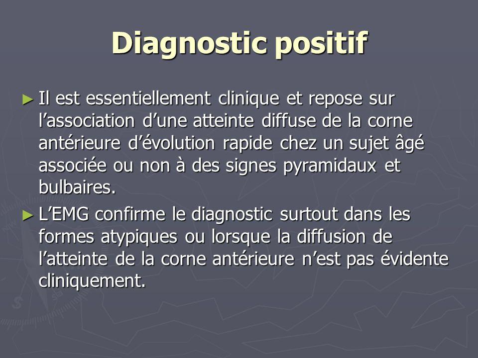 Diagnostic positif Il est essentiellement clinique et repose sur lassociation dune atteinte diffuse de la corne antérieure dévolution rapide chez un sujet âgé associée ou non à des signes pyramidaux et bulbaires.
