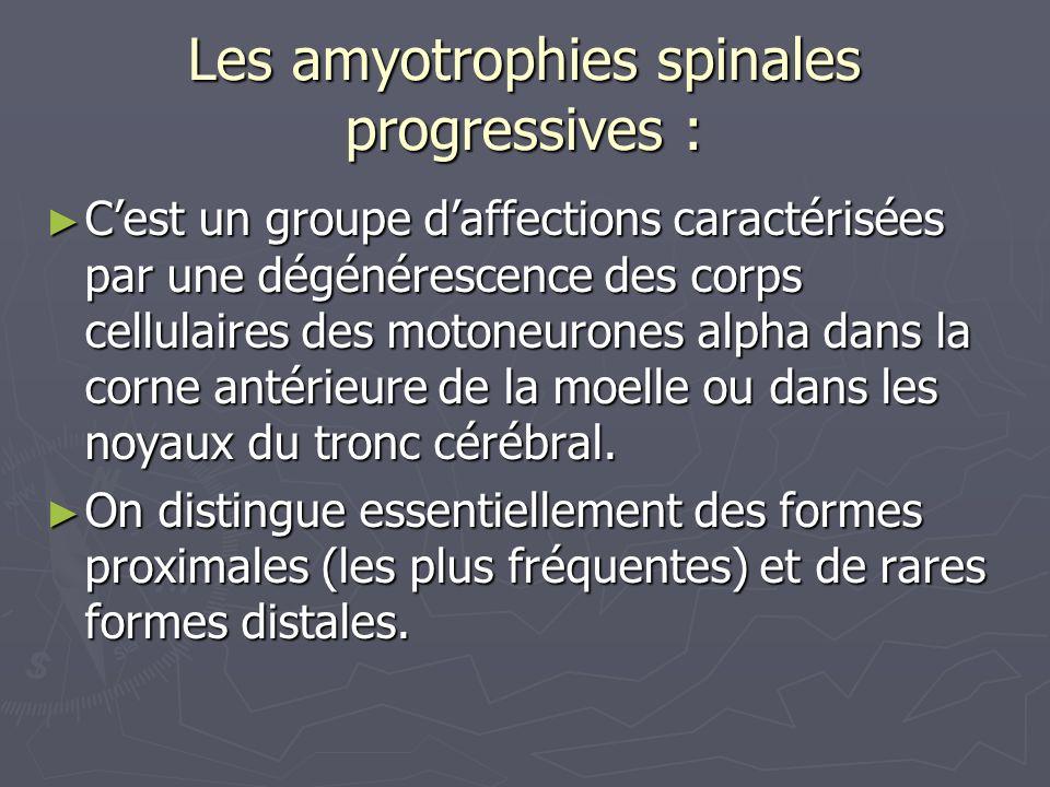 Les amyotrophies spinales progressives : Cest un groupe daffections caractérisées par une dégénérescence des corps cellulaires des motoneurones alpha dans la corne antérieure de la moelle ou dans les noyaux du tronc cérébral.
