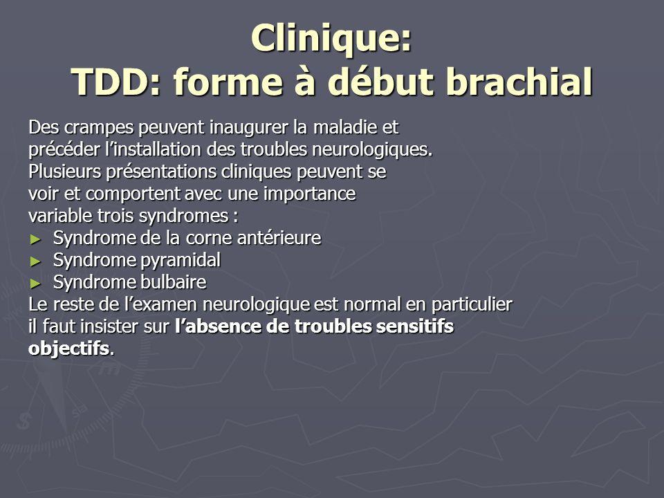 Clinique: TDD: forme à début brachial Des crampes peuvent inaugurer la maladie et précéder linstallation des troubles neurologiques.